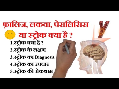 TIA Symptoms of Stroke CVA and WHAT IS A STROKE - PARALYSIS meaning
