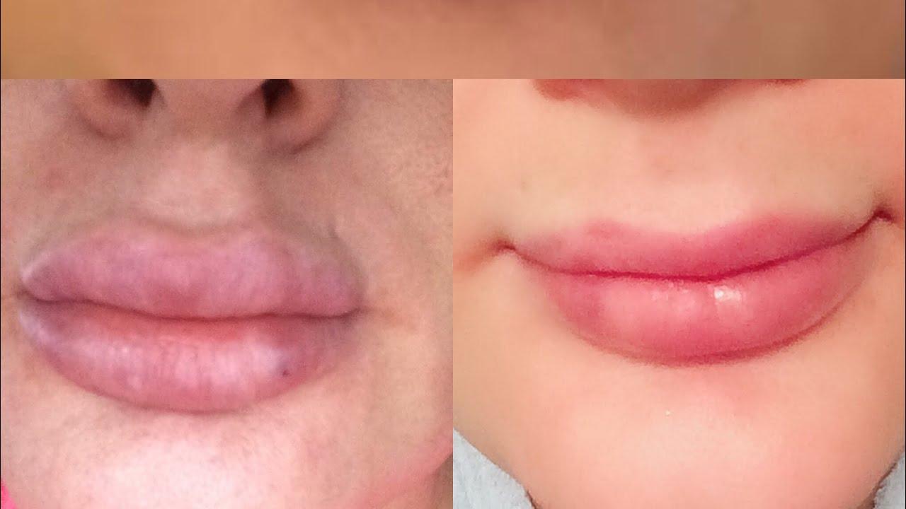 lip filler verwijderen
