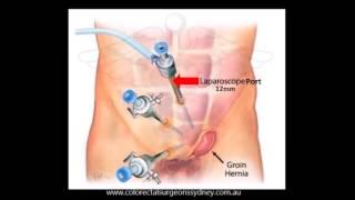 Groin Hernia Repair - Chinese Simplified
