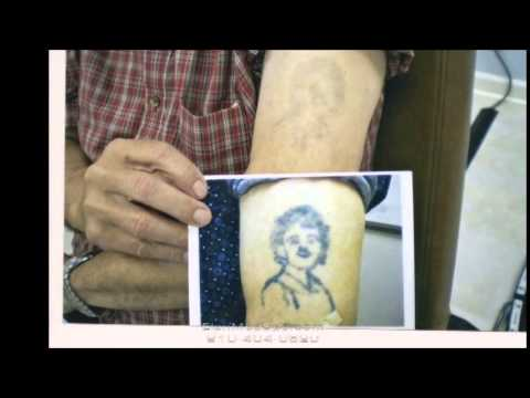 Expert Tattoo Removal | Tattoo Removal By Laser | Fayetteville NC ...