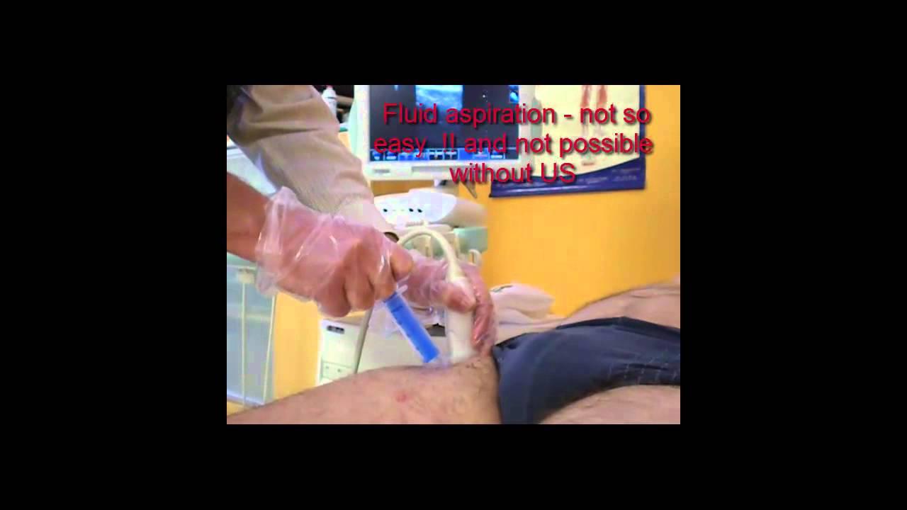 artroza 1 2 grade a articulației șoldului)