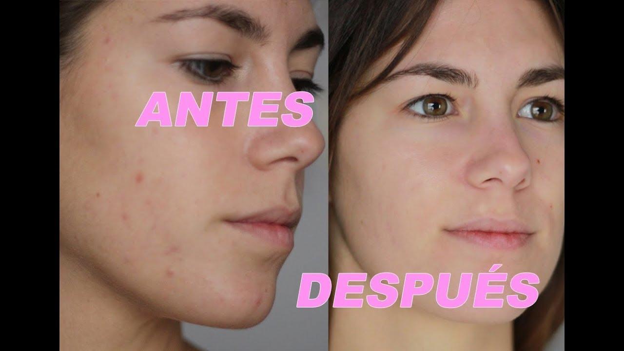 swiss clinic skin renewal