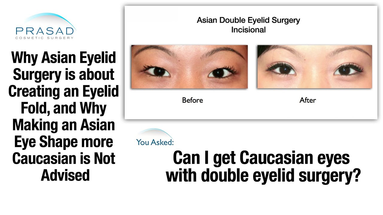 why changing natural asian double eyelids into a caucasian shape is