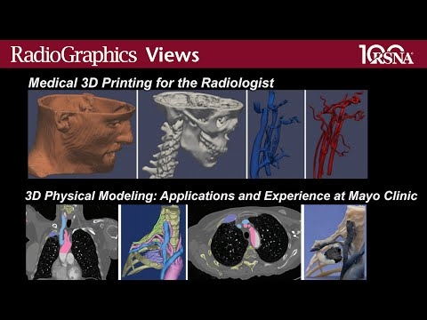 Three-dimensional Printing and Modeling (RadioGraphics November-December 2015)