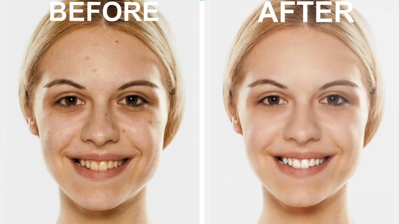 free teeth whitening photo editor app
