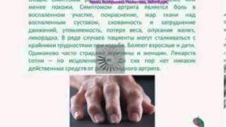 Ревматоидный артрит, подагра.