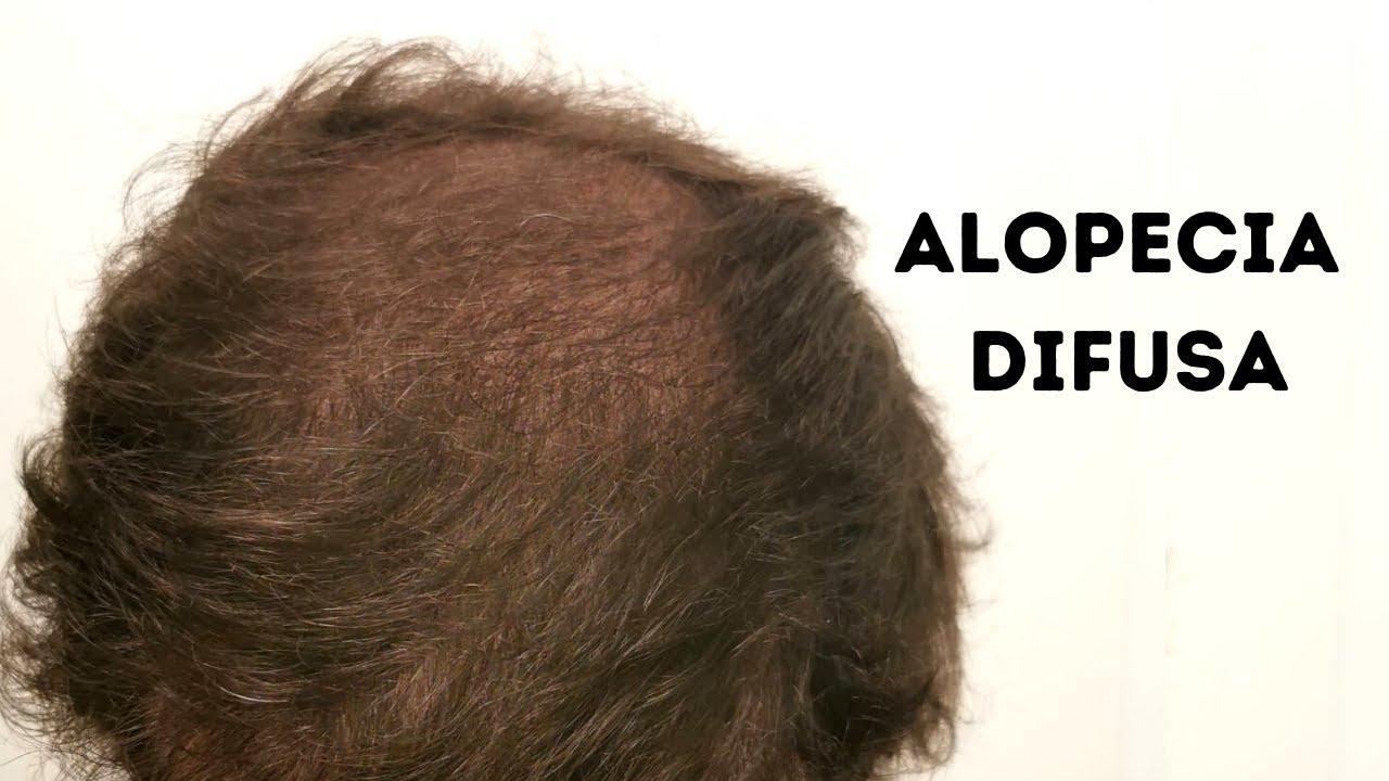 ALOPECIA DIFUSA: ¿QUÉ ES Y CÓMO TRATARLA?
