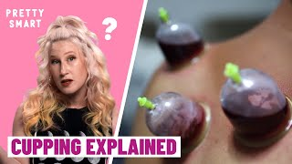 Everything you need to know about cupping  | PRETTY SMART