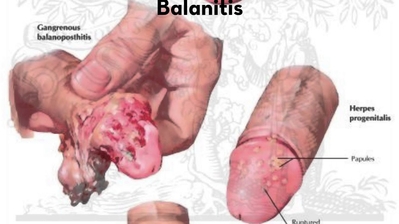 Toe, Foot and Leg Ulcers And Diabetic Sores | Natural ...