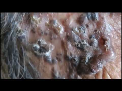 Super Blackheads - Dilated Pores - Comedo Naevus