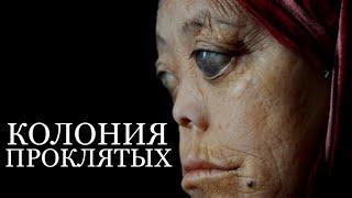 История Путешествия Кэт Марсден в Якутию MISS KATE MARSDEN (колония проклятых)