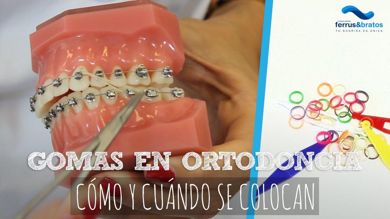 Gomas Ortodoncia Cómo Y Cuándo Se Colocan Youtube