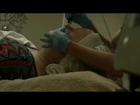 Procedures - Silk Peel Laser Treatment