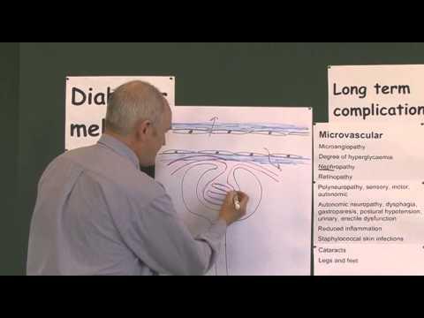 Diabetes 19, Microvascular Complications
