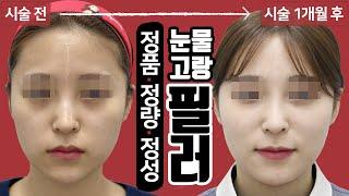 눈물고랑, 앞광대, 코필러 시술영상 톡스앤필 삼성점