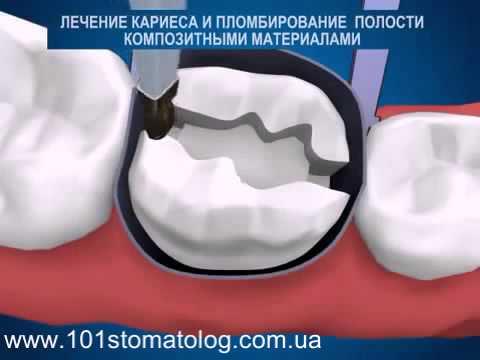 Пломбирование передних зубов: какую пломбу лучше ставить
