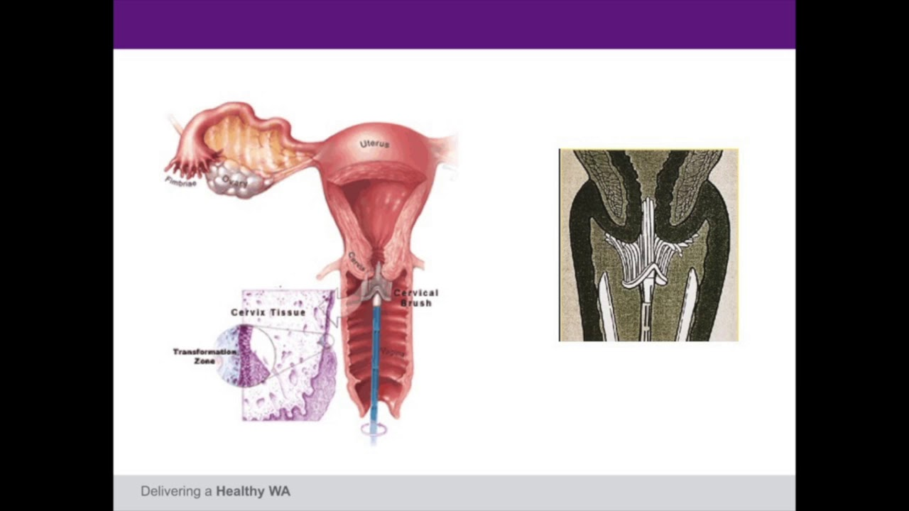 Eradicating cervical cancer? Let\'s start with the new cervical ...