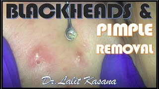 Video BLACKHEADS AND PUSTULAR ACNE REMOVAL download MP3, 3GP, MP4, WEBM, AVI, FLV Agustus 2017