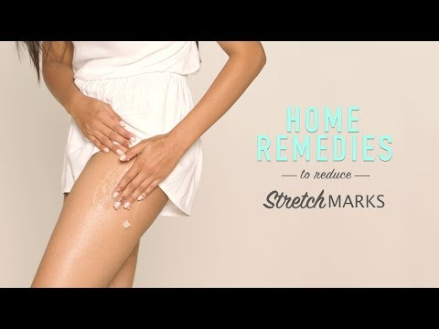 How To Reduce Stretch Marks | DIY Home Remedies