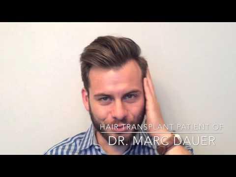 Hair Transplant Testimonial
