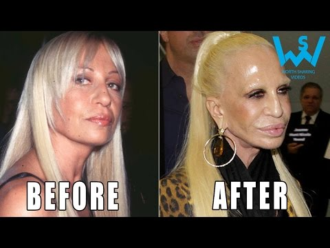 Worst celebrity plastic surgery disasters | Plastic surgery fails