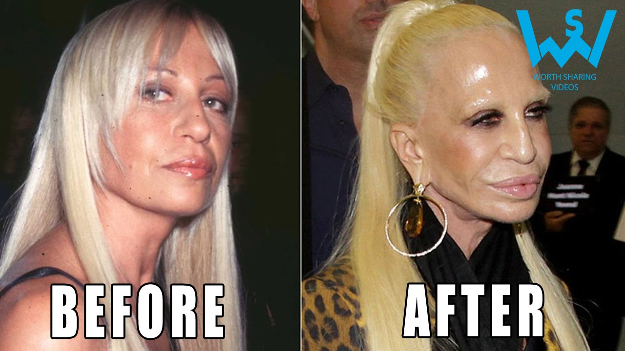 Worst celebrity plastic surgery disasters