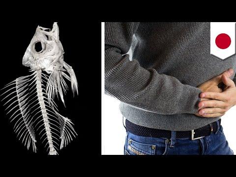 Doctors Remove Fish Bone Stuck In Man's Small Intestine - TomoNews