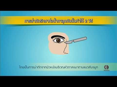ย้อนหลัง Health Me Please | โรคท่อน้ำตาอุดตัน ตอนที่ 5 | 20-01-60 | TV3 Official