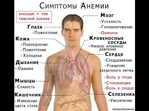 Плоскоклеточный рак. Причины, симптомы, признаки