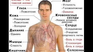 видео Пониженный гемоглобин: причины появления