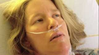 Open heart surgery video dairy, hypertrophic cardiomyopathy