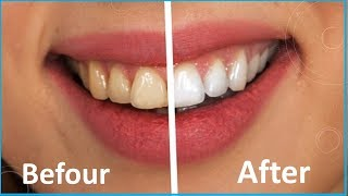 How To Whiten Teeth at Home in 2 Minutes \ Teeth Clean (2018)