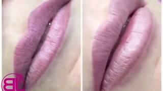 Hyaluron Pen контурная пластика губ