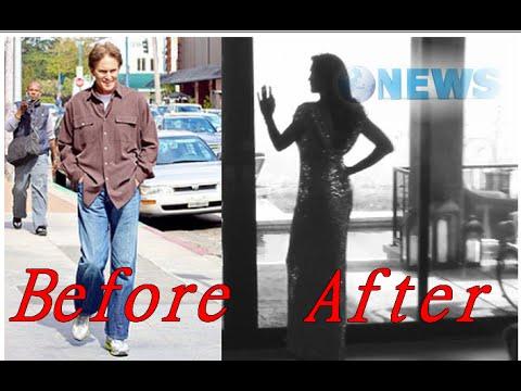 Bruce Jenner Feels 'Tremendous' After Gender-Changing Surgeries