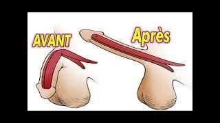 Comment augmenter la taille du pénis jusqu'à 30cm