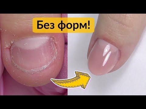 Преображение Обкусанных Ногтей БЕЗ ФОРМ Акрилатиком