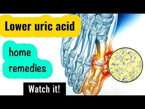 how-to-reduce-uric-acid-naturally-|-treatment-at-home