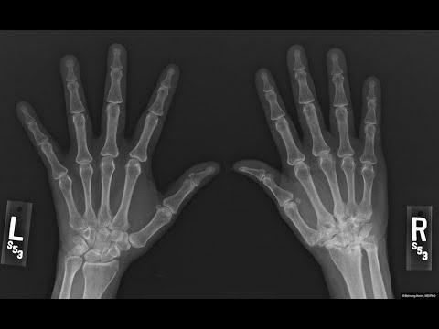 دراسة: التهاب المفاصل يصيب النساء أكثر من الرجال  - 15:23-2018 / 5 / 13