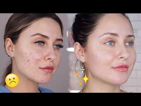 HOW TO GET RID OF ACNE SCARS + DARK SPOTS