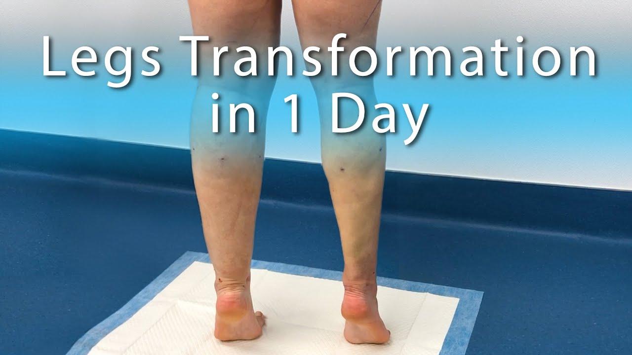 Lipedema Treatment | Lipo 360 Cankles & Knees, Ankles, Calves | High-Def  Liposuction| Expert Dr  Su