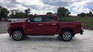 2018 GMC Canyon on Sale at Suss Buick GMC in Aurora | Denver CO J3417