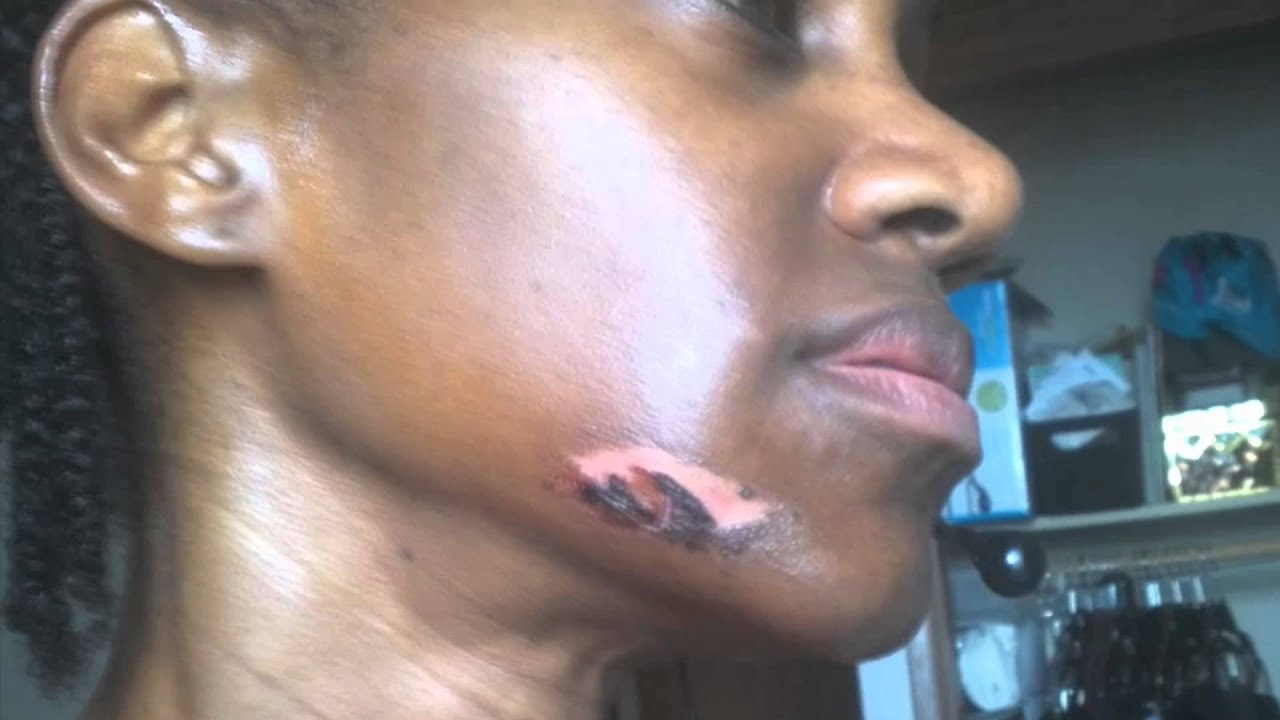 Laser Hair Removal Burns On Black Skin Youtube
