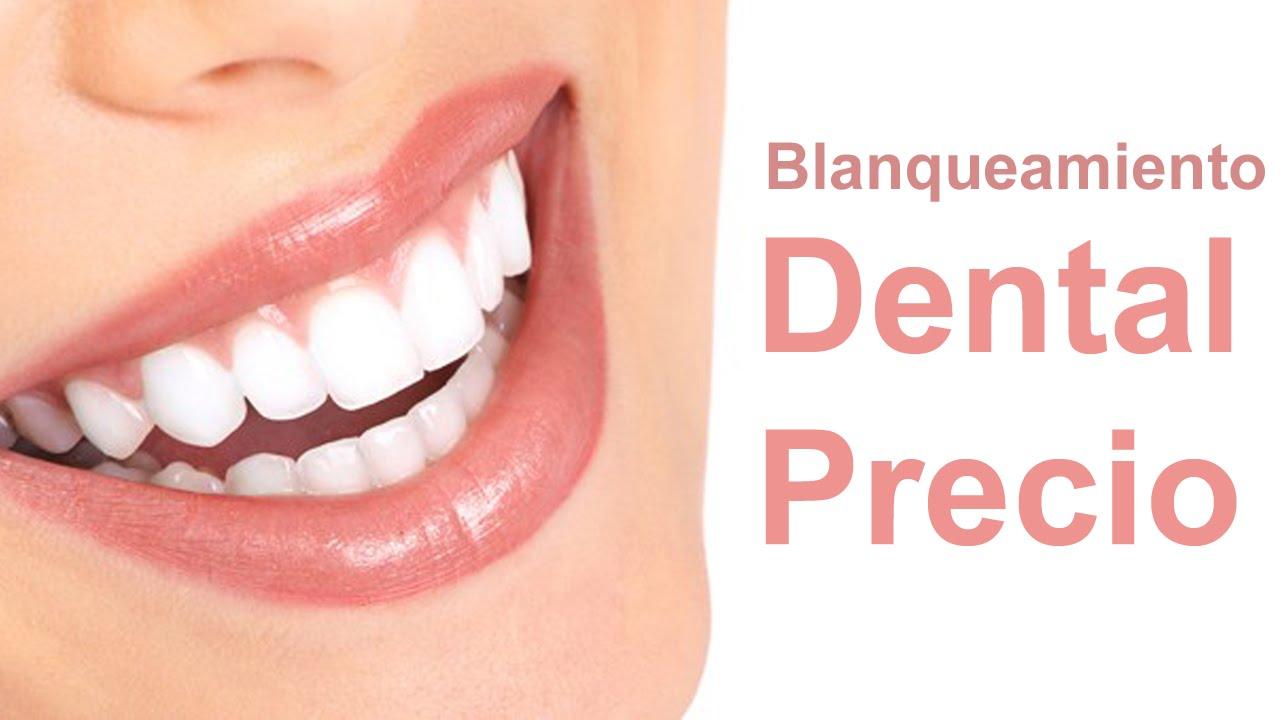 Blanqueamiento Dental Precio Youtube