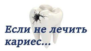 Кариес зубов. Пульпит, симптомы и лечение. Основы эндодонтии. Терапевтическая стоматология(В этом видео мы вам расскажем что такое кариес, как его диагностировать. А так же поговорим о том, что происх..., 2015-06-02T15:53:57.000Z)