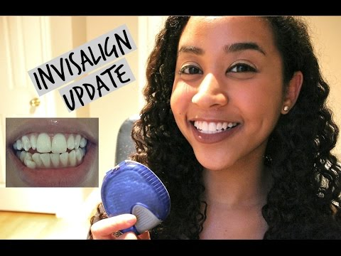 Invisalign Review Total Cost Invisalign Vs Ces Part