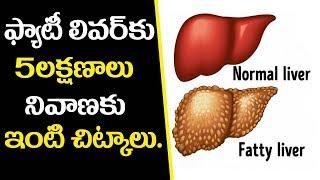 ఫ్యాటీ లివర్ లక్షణాలు,నివారణ-5 Effective Home Remedies For Fatty Liver Disease-Telugu Health Tips