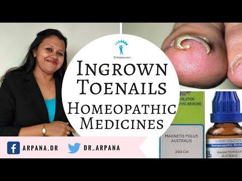 इनग्रोन टोनेल्स के लिए होम्योपैथिक इलाज    INGROWN TOE NAILS Homeopathic Medicines