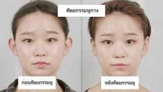 รีวิวศัลยกรรมเกาหลี: ก่อนหลังศัลยกรรมหู โรงพยาบาลไอดี