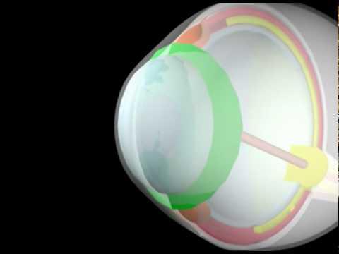 מבנה של העין (Eye Anatomy - Hebrew)