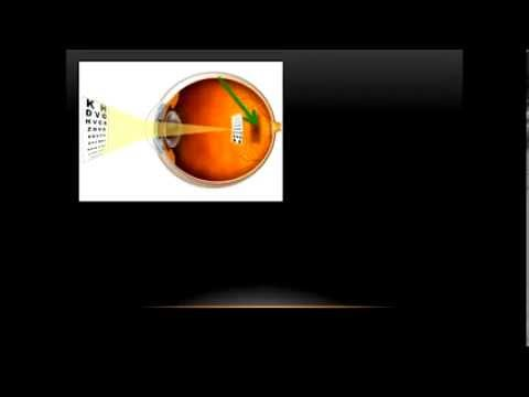 Cataracts, Glaucoma and Macular Degeneration (Video 6)